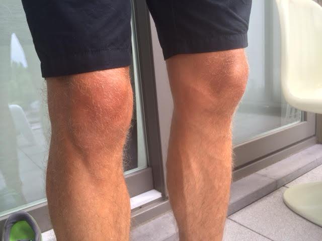 Lopen slecht voor je knieën? Fit to Run WordFit.be